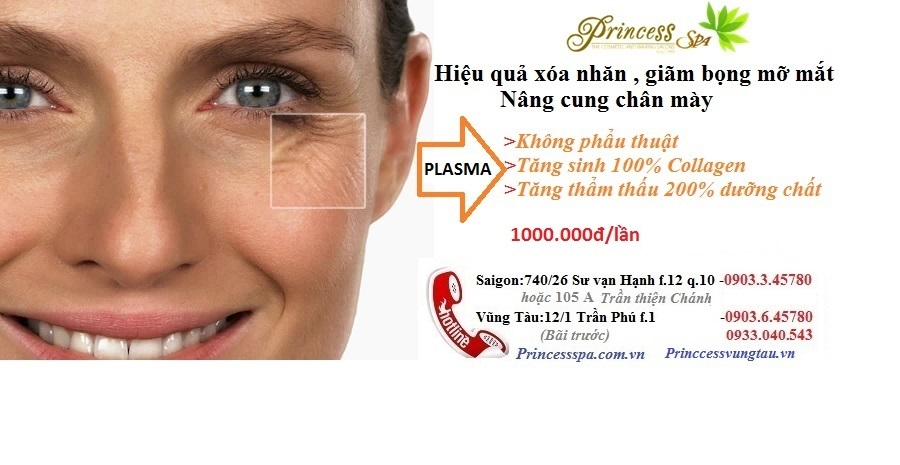 Hifu treatment for eye wrinkle