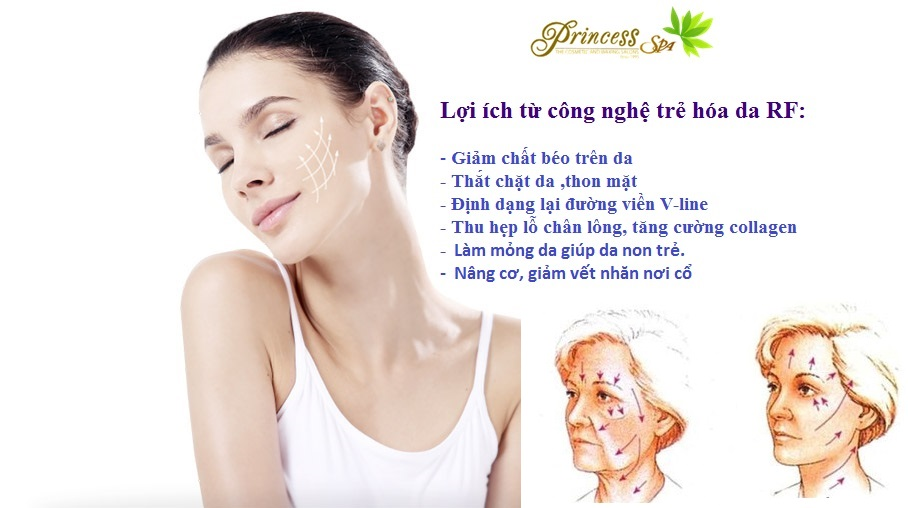 Radio Frequency Tightening facial